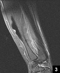 Figure 3: Characteristic candle wax lesion in the ulna