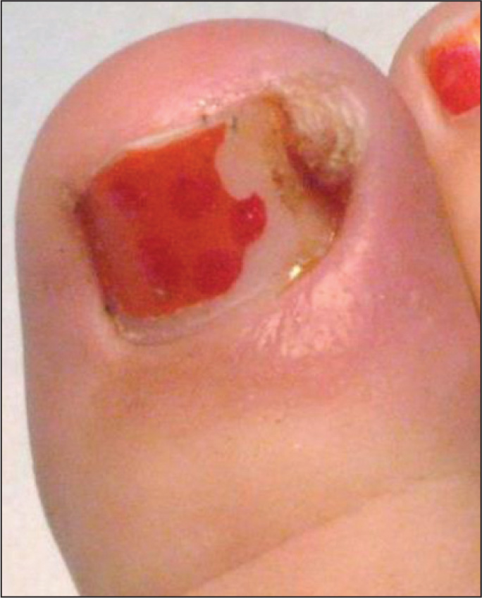 "Nailing"" the Management of the Ingrown Great Toenail"
