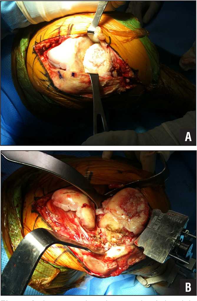 Intraoperative photograph of the right knee joint showing a concave distal femur and a convex medial tibial plateau (A). Intraoperative photograph of the right knee joint showing the extramedullary tibial alignment guide positioned 10 mm below the articular surface of the medial plateau (B).