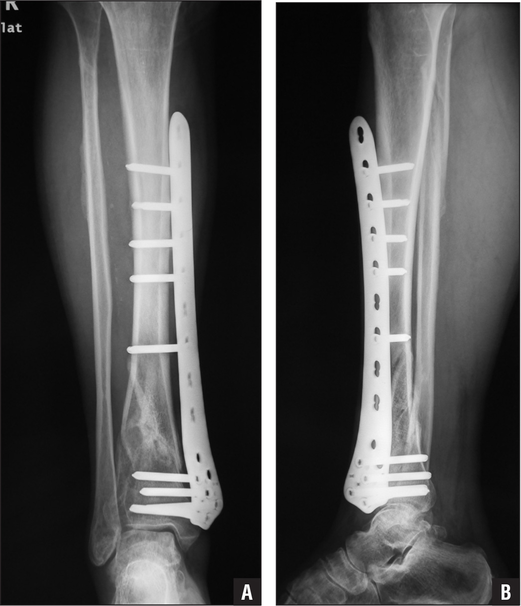 Three-month postoperative anteroposterior (A) and lateral (B) radiographs showing fracture union.