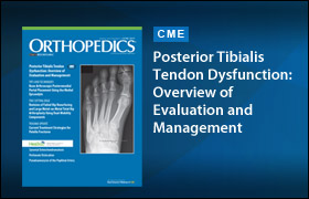 Posterior Tibialis Tendon Dysfunction: Overview of Evaluation and Management. June 2015