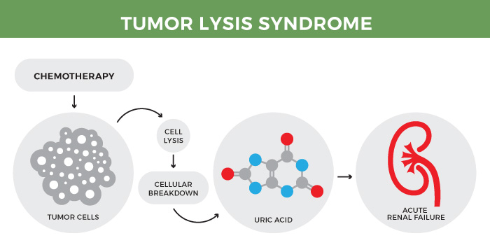 Tumor lysis syndrome.