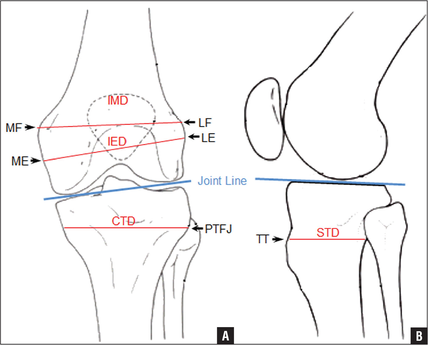 calculating the position of the joint line of the knee using a coronal a and sagittal b diagrams of anatomical landmarks