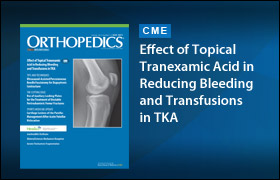 Effect of Topical Tranexamic Acid in Reducing Bleeding and Transfusions in TKA: May 2015