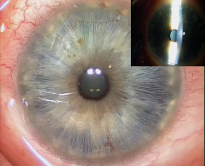Figure 7. Completed view of superficial keratectomy. The cornea is devoid of all opacities from the map-dot-fingerprint corneal dystrophy.
