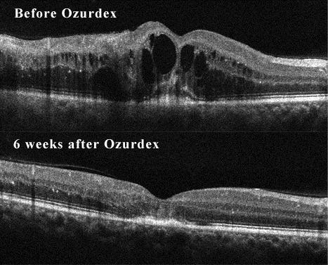 OCT of patient in Figure 1 before (top) and 6 weeks after (bottom) dexamethasone intravitreal implant injection. Visual acuity improved but is limited by significant ellipsoid zone damage.