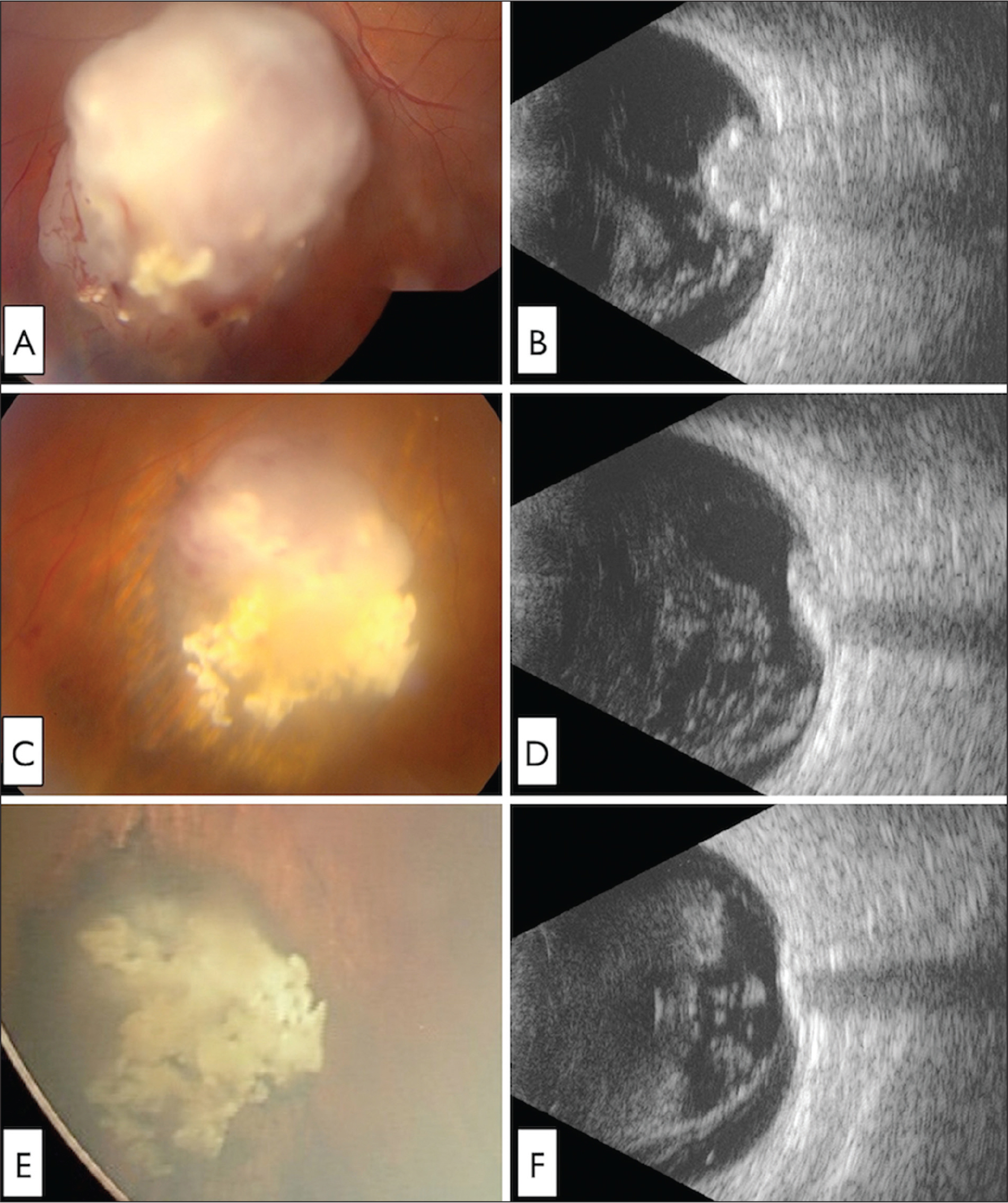 A 28-year-old man was newly diagnosed with group D retinoblastoma in the left eye. At presentation [elsewhere], retinoblastoma measured 11 mm in basal dimension and 6.8 mm in thickness with (A) extensive vitreous seeding, best documented on (B) ultrasonography. External beam radiotherapy (EBRT) was provided. Following EBRT, (C) tumor recurrence on the posterior margin with (D) recurrent vitreous seeding was documented. Intra-arterial chemotherapy was provided with complete resolution of tumor and vitreous seeds. Following intra-arterial chemotherapy, (E) tumor regression was documented and (F) all vitreous seeds were calcified. Later, minor solid tumor recurrence necessitated plaque radiotherapy and the tumor has remained regressed for 32 months following intra-arterial chemotherapy.
