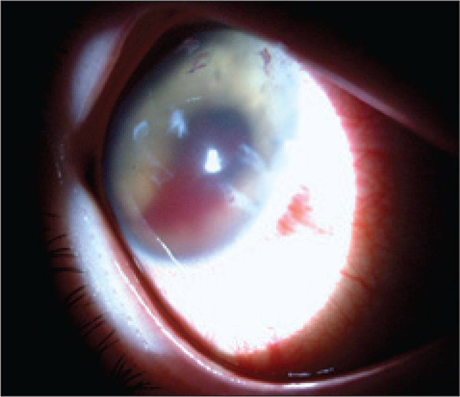 Slit-lamp digital photograph of the patient's right eye with corneal lesions, hyphema, and iris lesions in October 2009.