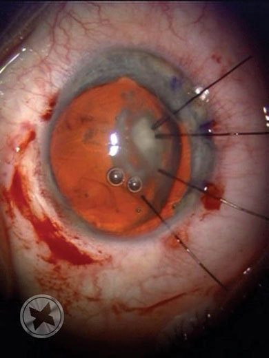 Photo of the same lens after placement of capsular hooks