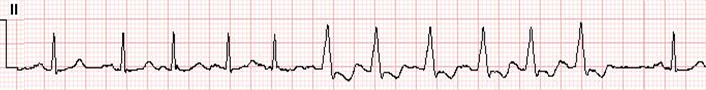 LBBB-RateDependent-Strip