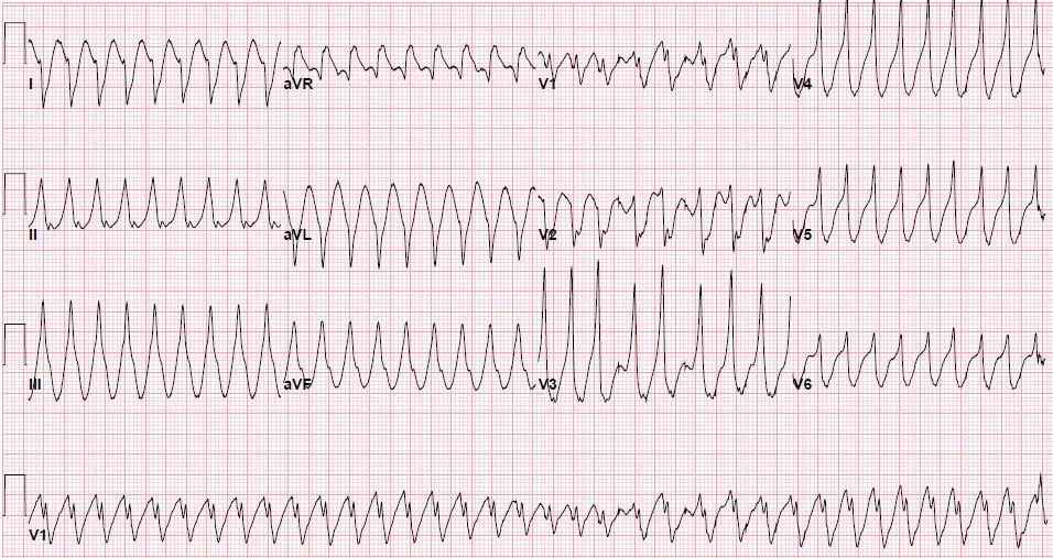 Atrial Fibrillation Topic Review | LearntheHeart com