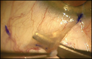 Spring scissors are used to cut a thin conjunctival flap. With round-tipped scissors, Tenon's can be cut close to the posterior aspect of the conjunctiva.