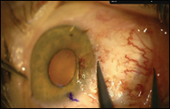 The conjunctival defect created by pterygium excision is measured with calipers, and the horizontal extent is measured with the eye in forced abduction.