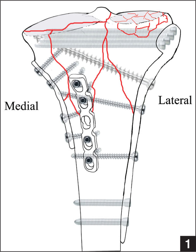 Posterior Coronal Plating Of Bicondylar Tibial Plateau