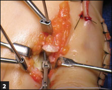 Placement of the suture with the Mini-Scorpion into the plantar plate