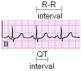 Amal Mattu's ECG Case of the Week – August 1, 2016 – ECG ...