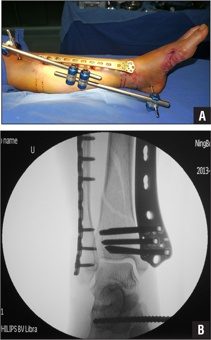 Photograph (A) and radiograph (B) of closed functional reduction and stabilization of the fracture using an external frame during supercutaneous plating.