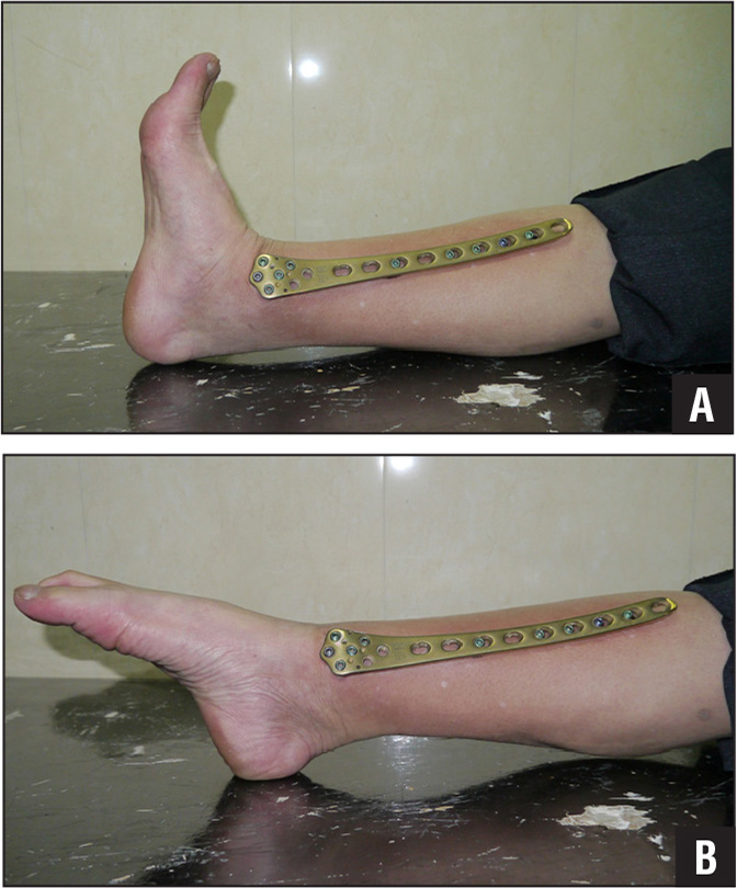 Four-month postoperative photographs of the dorsiflexion (A) and plantarflexion (B) positions of the ankle showing good function of the adjacent joint with supercutaneous plating in situ.